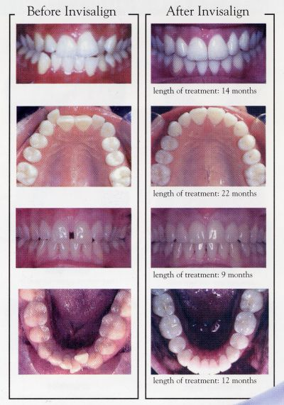 scan-invisalign-teeth